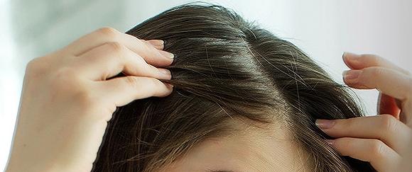 モーガンズシャンプーの頭皮の曲がり角の画像